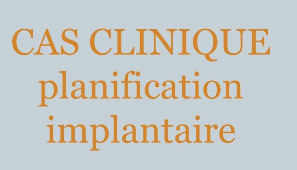 La planification Implantaire
